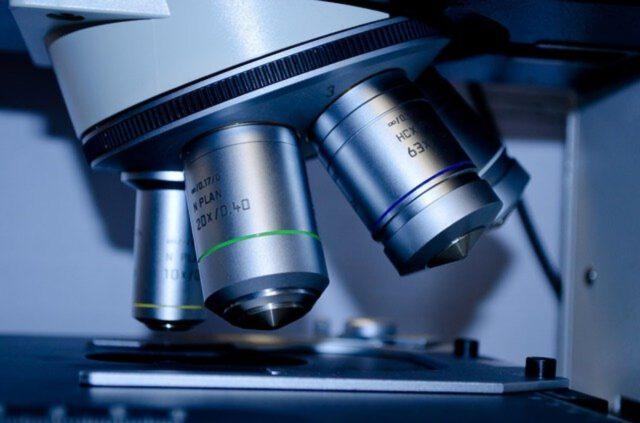 Czy konieczne jest badanie żeńskich hormonów płciowych?